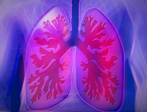 Pulmonary rehab vital to treating killer COPD